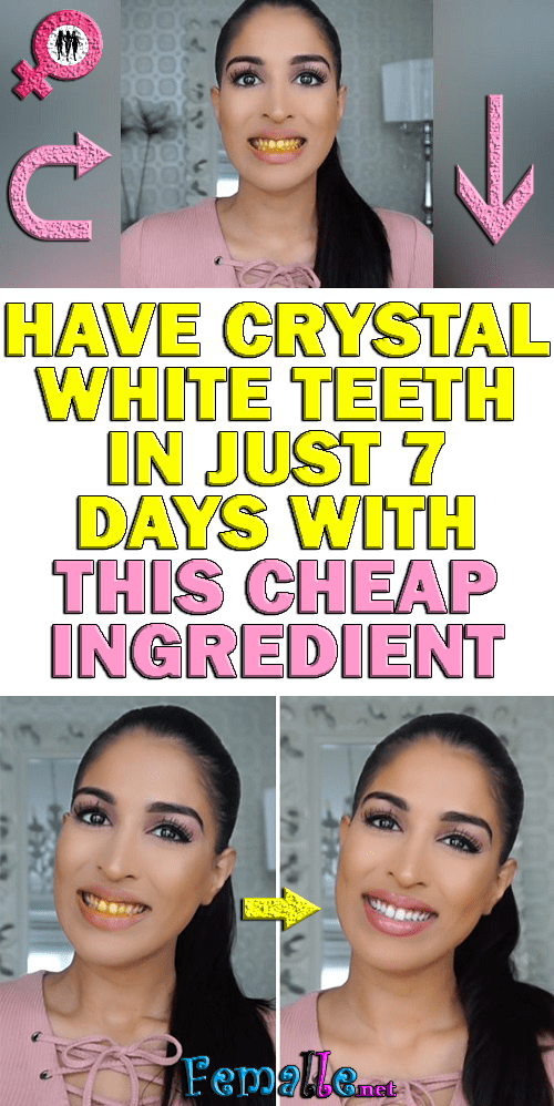 Have crystal white teeth in just 7 days with this cheap ingredient