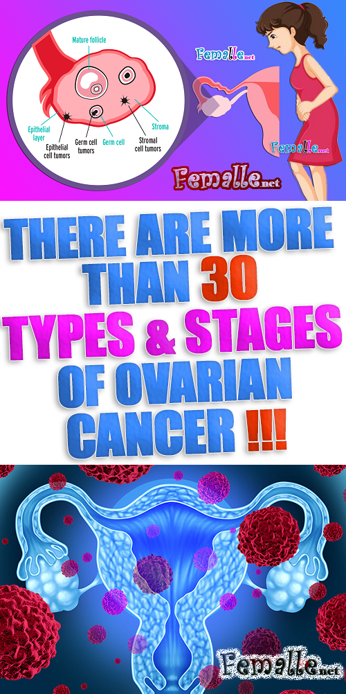 There are more than 30 Types & Stages of Ovarian Cancer
