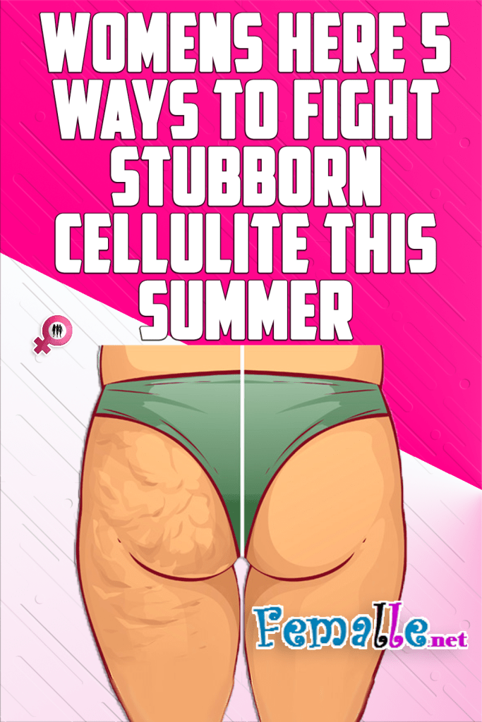 Womens here 5 Ways to Fight Stubborn Cellulite This Summer