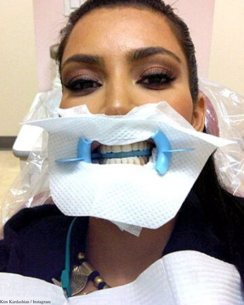 kim kardashian celebrity dentists