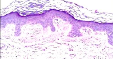 amiloidosis cutanea