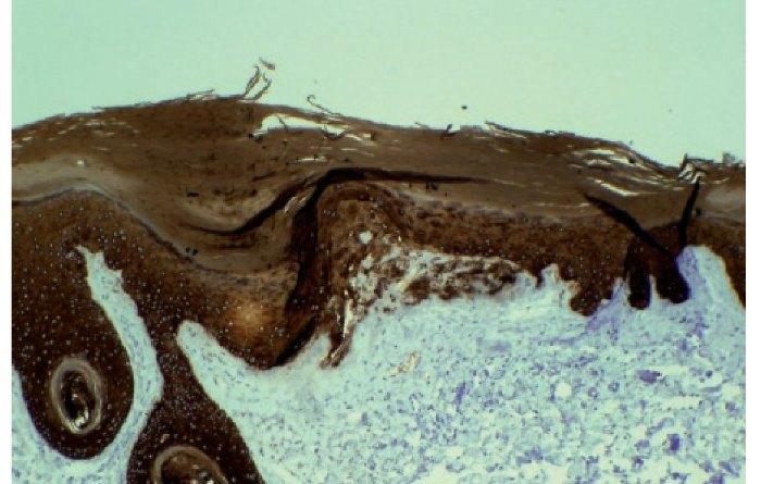 liquen amiloide