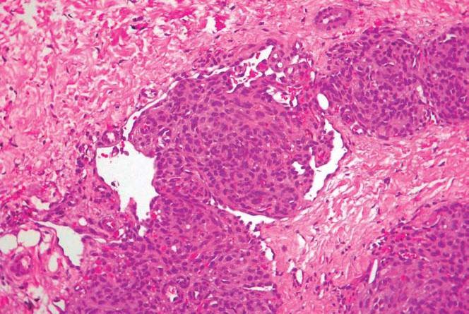 angioma en penacho