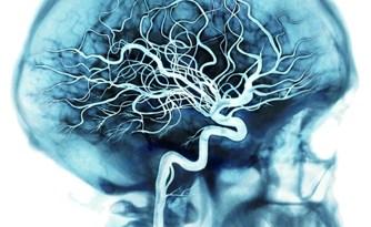 microlisencefalia de tipo B