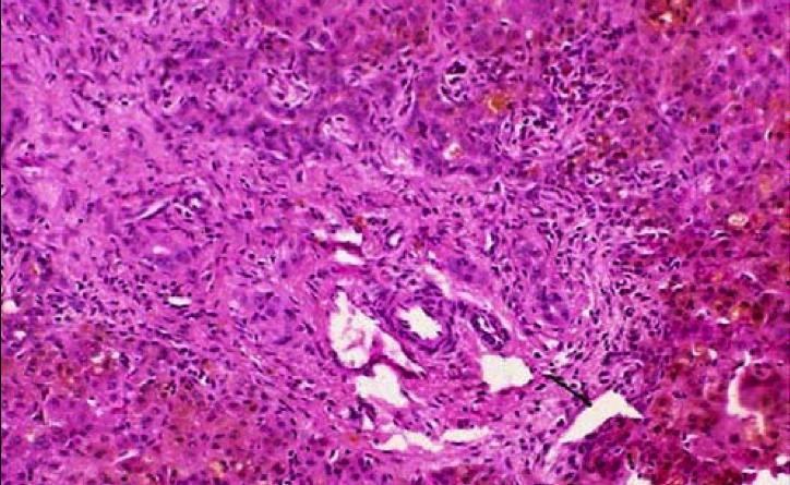 disfuncion renal