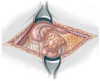 atresia intestinal multiple