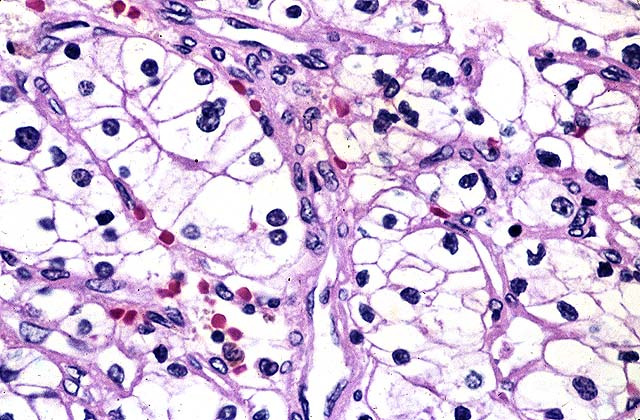 celulas renales