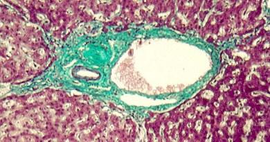 hepatitis autoinmune