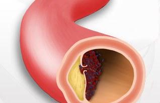 arteria periferica