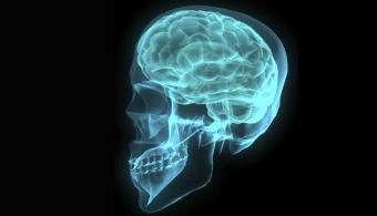 epilepsia mioclonica
