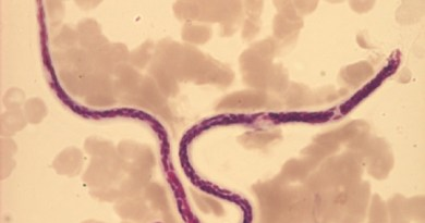 filarasis linfatica
