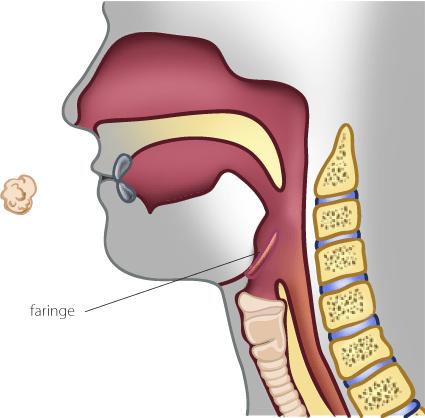 miopatía distal con debilidad faríngea y de las cuerdas vocales