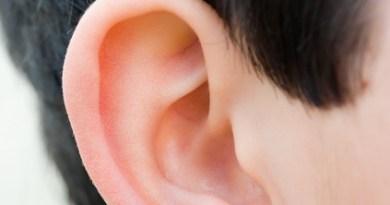 microtia malformación congénita oído externo