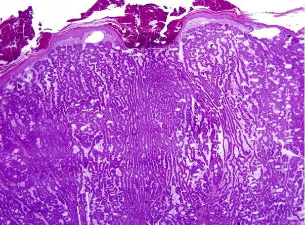 carcinoma basocelular nevoide