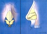 nariz bífida