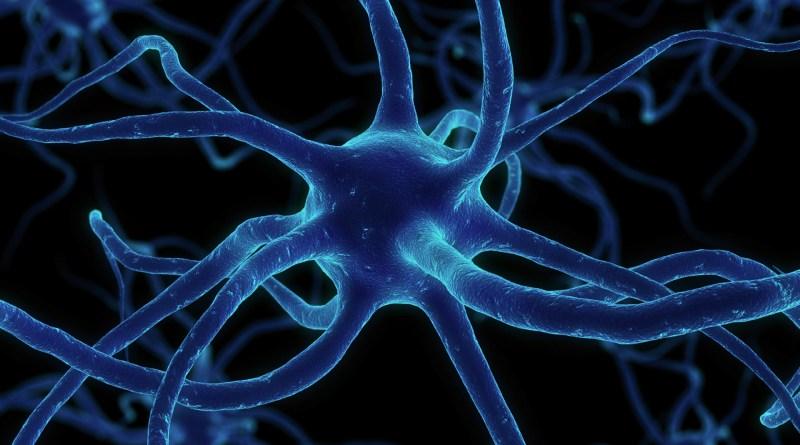 Neuropatía axonal gigante