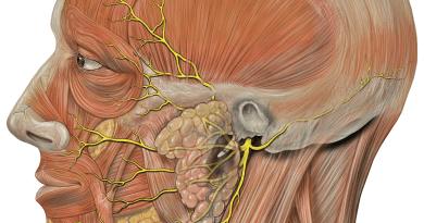 Parálisis periódica hipocalémica