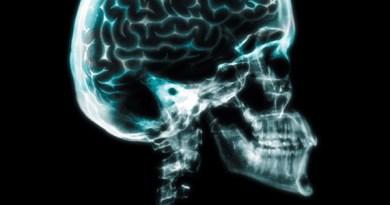 Osteopetrosis con displasia neuroaxonal, forma infantil