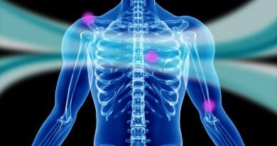 Osteoporosis juvenil idiopática