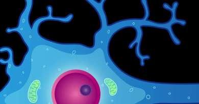 Paraplejía espástica - glaucoma - deficiencia intelectual