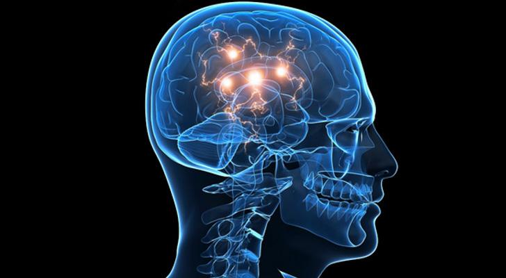 Parkinsonismo precoz - deficiencia intelectual