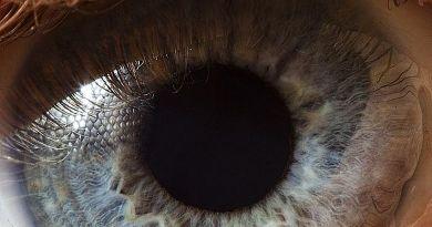 Ptosis - estrabismo - pupilas ectópicas