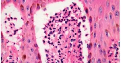 Epidermólisis ampollosa simple por deficiencia de placofilina