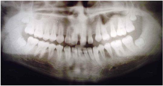 Síndrome de fibromatosis gingival - hipertricosis