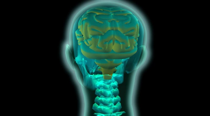 Vasculopatía cerebrorretiniana