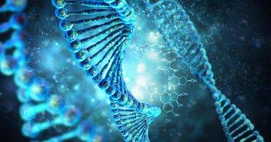 Convulsiones - deficiencia intelectual por hidroxilsinuria