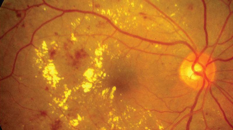 Distrofia macular cistoide