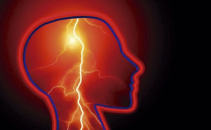Microcefalia - epilepsia - deficiencia intelectual - cardiopatía