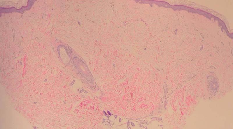 Mucinosis papular acra persistente