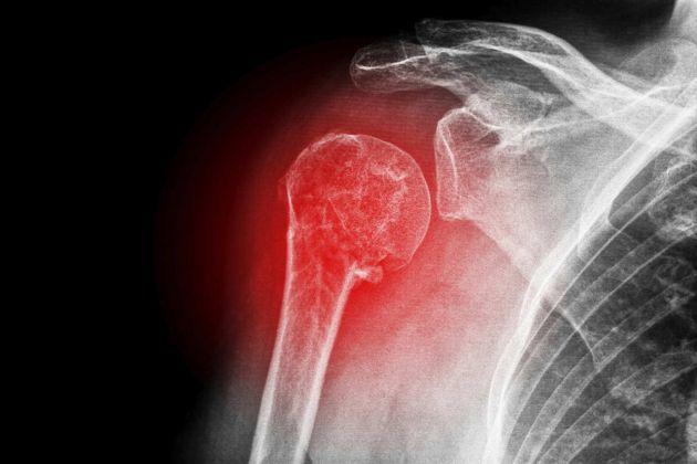 Osteogénesis imperfecta - microcefalia - cataratas