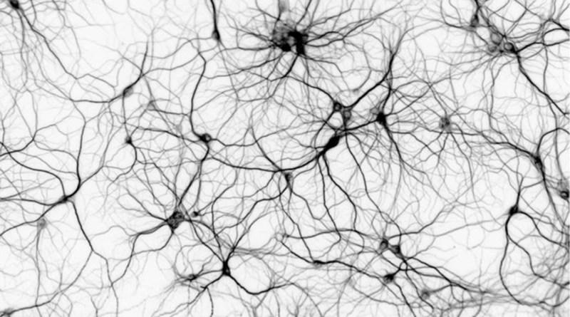 Síndrome de hipotonía - retraso en el desarrollo - microcefalia