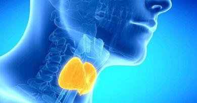 Hipotiroidismo congénito por anomalía del desarrollo