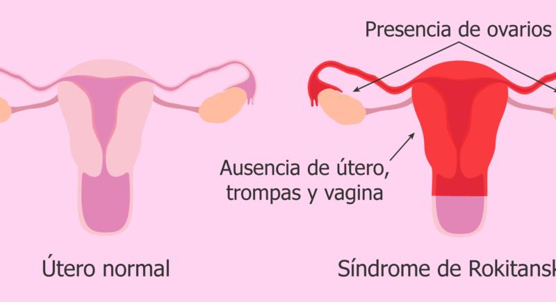 Síndrome de Mayer-Rokitansky-Küster-Hauser tipo 1