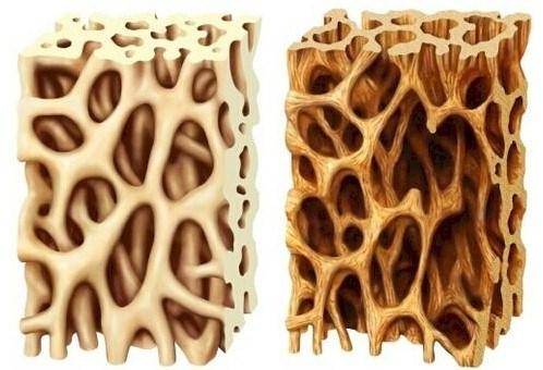 Miopatía por cuerpos de inclusión con enfermedad ósea de Paget y demencia frontotemporal