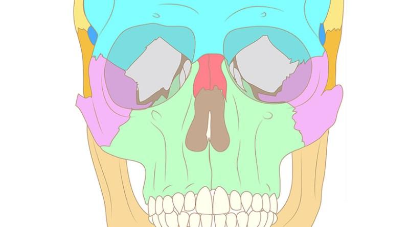 Espectro oculoauriculovertebral con anomalias radiales