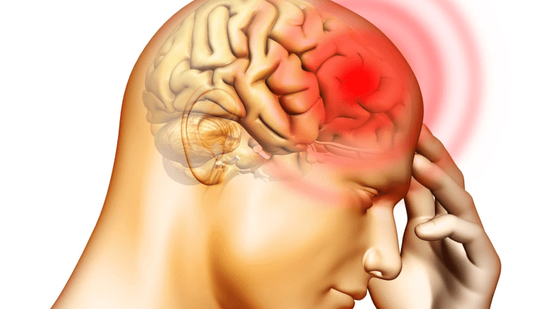 Meningitis meningocócica