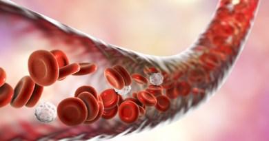 La apnea obstructiva del sueño afecta la función cardíaca de los pacientes con CTEPH