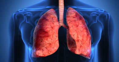 fibrosis idiopatica pulmonar