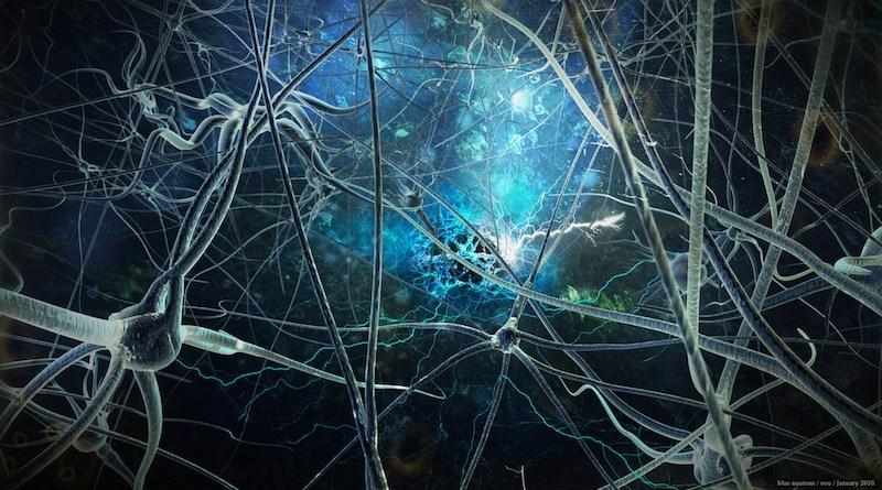 parálisis supranuclear