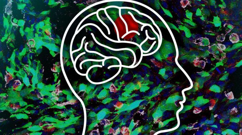 La Sociedad Nacional de Tumores Cerebrales otorga $ 750,000 para un ensayo clínico adaptativo para el glioblastoma