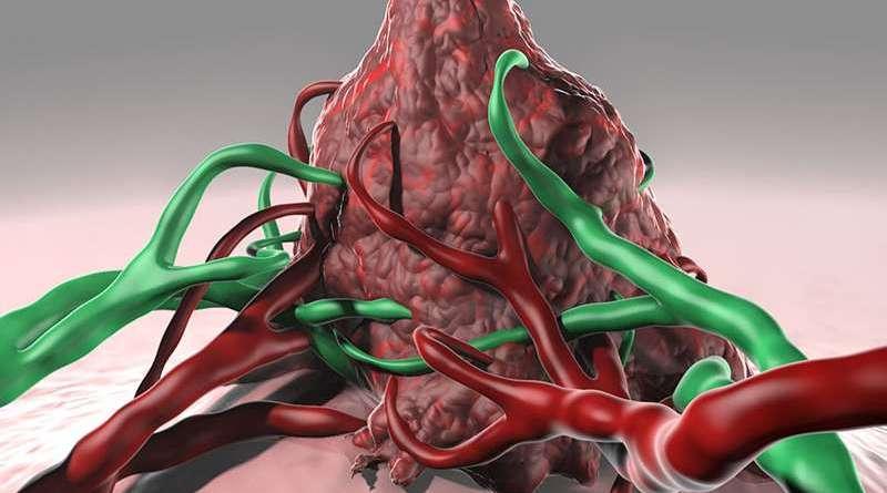 ¿Podría este descubrimiento ayudar a prevenir el neuroblastoma?