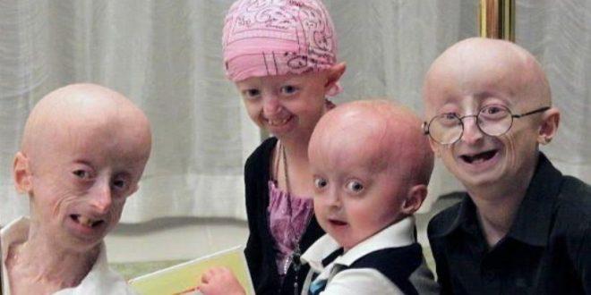 Dos terapias génicas aumentan la esperanza de vida en ratones con progeria