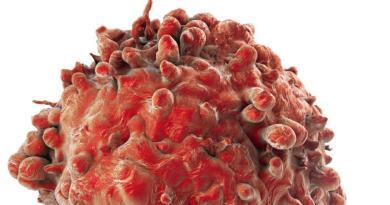 Los tumores raros también son enfermedades raras