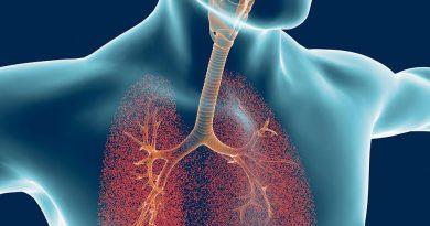 Ciertos pacientes con PH asociado a la sarcoidosis podrían beneficiarse de un tratamiento específico para el PH, sugiere un estudio del mundo real