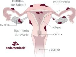 Endometriosis y Ovulación: ¿Cómo influye?