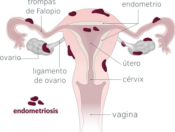 Qué es la endometriosis. Fuente: Wikimedia